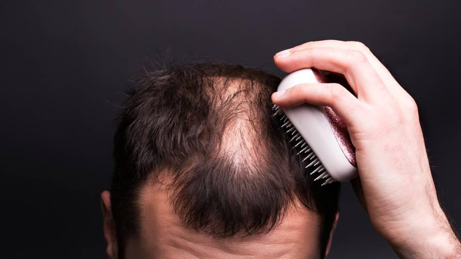 Perte de cheveux - Quelles solutions s'offrent à vous